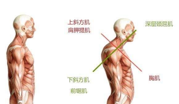 Adrenalease Posture Apparel