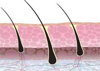 科学家发现某些皮肤癌可能起源于毛囊