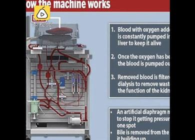 重大突破!新仪器技术使肝脏可体外存活7天,还能修复损伤